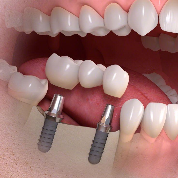 Fixa sobre implantes
