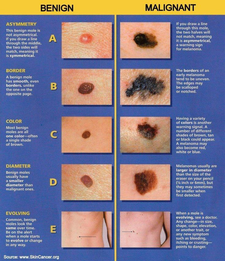 Good advice on Melanoma. Check your skin regularly.
