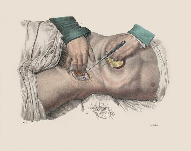 Jean Baptiste Marc Bourgery and Nicholas Henri Jacob, 'Iconografia d'anatomia chirurgica e di medicina operatoria,' (1841), Florence. Ligature of an artery in the inguinal region, using sutures and a suture hook, with compression of the abdomen to reduce aortic blood flow. (all images courtesy Wellcome Library, London/Wellcome Images)