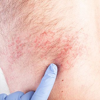 A doctor diagnoses a shingles rash.