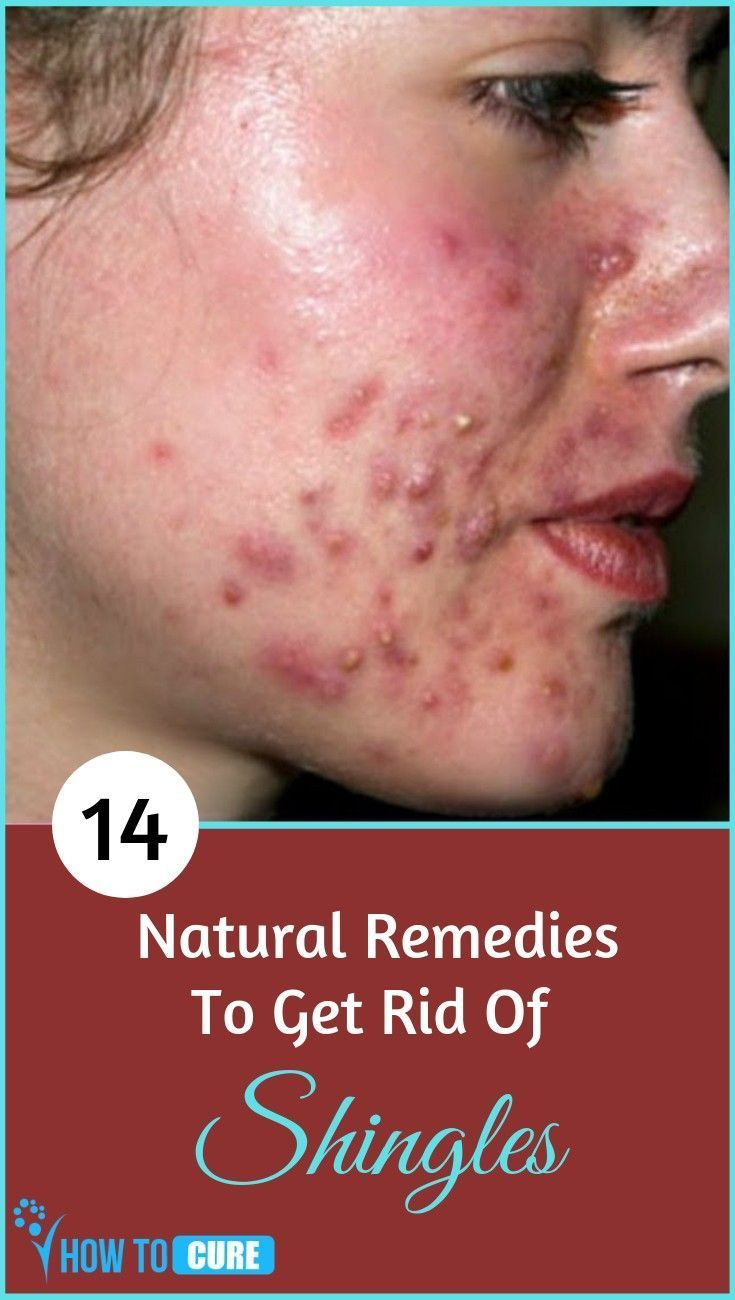Pin By Shannon Young On Shingles On Face In 2020 Shingles On Face Shingles Relief Rash On Face