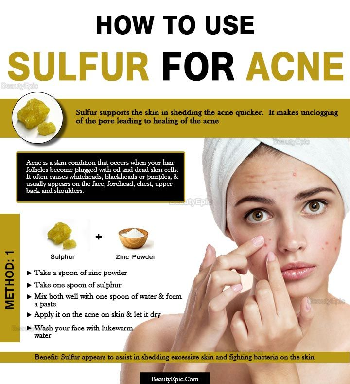How Does Sulfur Help with Acne? | Health and beauty | Elegant makeup