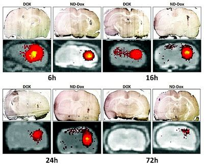 Nanotechnology Today - Convection enhanced delivery of nanodiamond drug delivery platforms for intracranial tumor treatment. New system uses nanodiamonds to deliver chemotherapy drugs directly to brain tumors Researchers at UCLA's Jonsson Comprehensive Cancer Center have developed an innovative drug-delivery system in which tiny particles called nanodiamonds are used to carry chemotherapy drugs directly into brain tumors. The new method was found to result in greater cancer-killing…