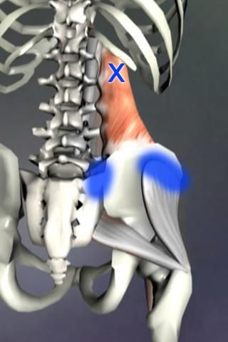 This is a really common trigger point in the Quadratus Lumborum that refers pain into the lower back.