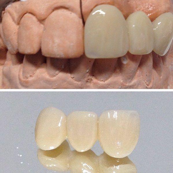 Vamos trabalhar Pq tempo é fresquinho fixa com reforço de fibra. Uma ótima tarde a todos. Agende por email uma visita em seu consultório. Saquarema Bacaxá Araruama e região. trabalhamos com diversos tipos de próteses. flexíveis acrílicas caracterizada no sistema STG PPr Com grampo estético laboratórioleandroosorio@gmail.com #boatardee #saquarema #araruama #denist #dental #dentista #dentsply #dentures #dentalart #dentallab #dentistry #denstistry #dentalgram #dentallife #Dienteisosit…