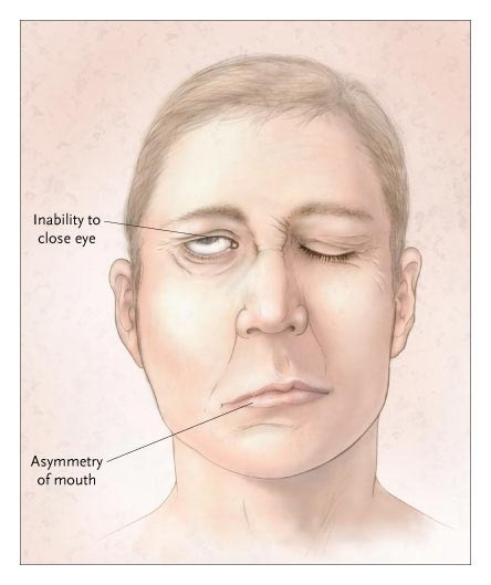 Damage to the right facial ne