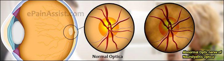 Neuromyelitis Optica