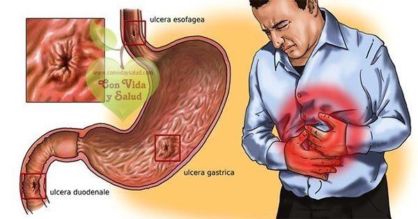 La función principal de nuestro estómago es procesar todos los alimentos que comemos, después, según el proceso digestivo, nuestros intestinos se encargan de extraer los nutrientes necesarios para el cuerpo y, posteriormente, se expulsa lo que a nuestro cuerpo no le sirve.    En conclusión, el e