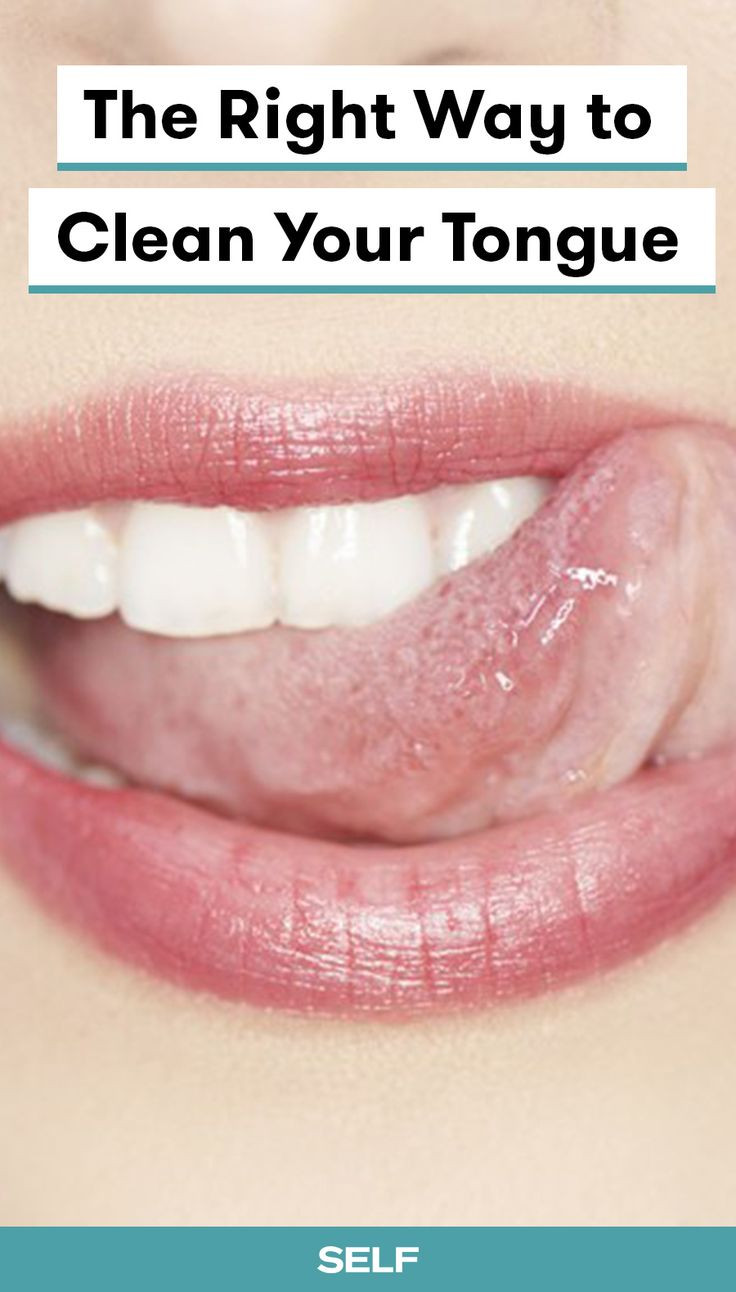 Your Tongue Is Probably Filthy Here S How To Clean It Natural Oral Care Tongue Cleaner Oral Hygiene