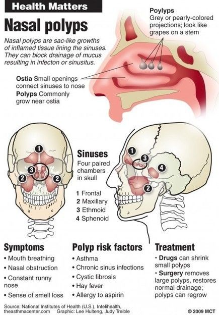 How To Get Rid Of Throat Polyps Naturally