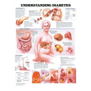 AW Medical Anatomical charts - understanding diabetes - Training ...