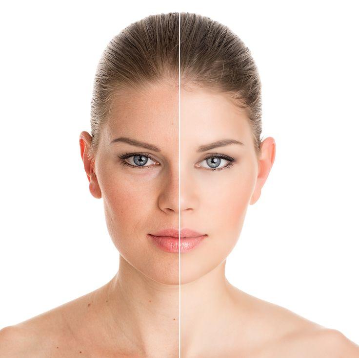 Léčba pigmentací a akné  Tým specialistek na kosmetologii a odbornou péči o pleť vám pomůže vyřešit všechny problémy s vaší pletí. Pigmentové skvrny i akné budou minulostí!
