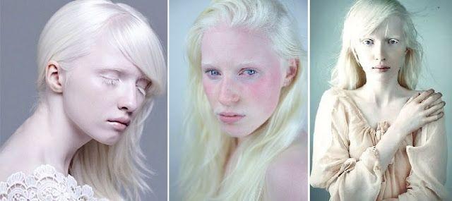 Bo włos ma swój głos!: Albinizm