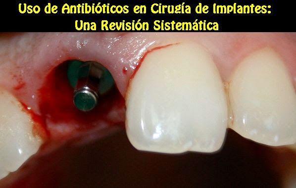 Uso de Antibióticos en Cirugía de Implantes: Una Revisión Sistemática | OVI Dental