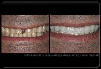 Les facettes sont de minces coquilles qui sont appliquées pour couvrir les surfaces avant des dents