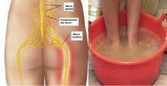 Il dolore sciatico o sciatalgia solitamente viene trattato con gli antidolorifici, tuttavia esiste un rimedio naturale molto più potente di quest'ultimi.