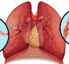 Muchas funciones en nuestro organismo son muy importantes, tal como el de las arterias que transportan los nutrientes y oxígeno a todo el cuerpo, y cuando éstas se obstruyen o se dañan, nuestro cuerpo sufre las consecuencias. Por eso, para mantener una buena salud en general es necesario que las arterias estén limpias y libres …