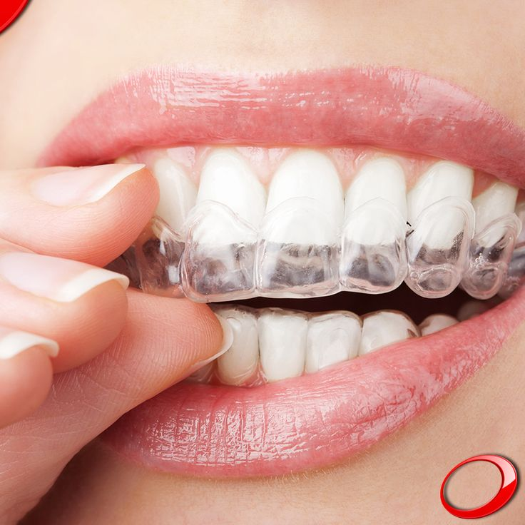 Studies suggest that about 15% of the world's population suffers from bruxism - the act of grinding involuntarily when they are nervous or sleeping - which is believed to derive essentially from daily stress. ........................... www.dinp.co.uk (For more info or to schedule a evaluation query, send your contacts by private message) #dentist #implants #smile #clinic #health #healthy #qualityoflife