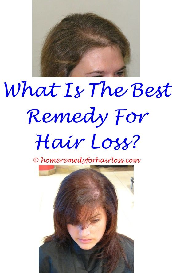 14 best Thyroid Hair Loss images on Pinterest | Hair loss cure ...