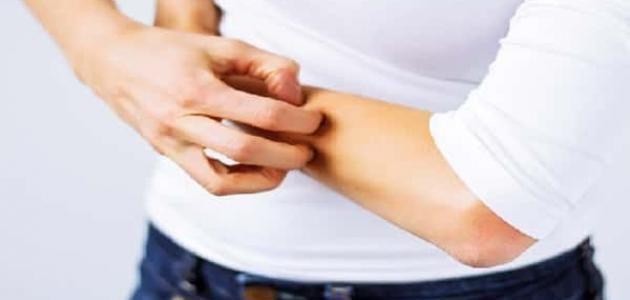 علاج حكة الجسم بالأعشاب Skin Cream Anti Aging Psoriasis Severe Eczema