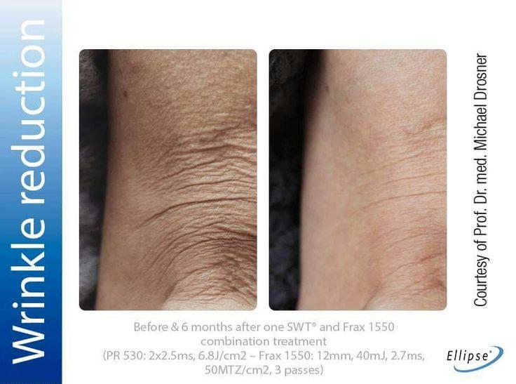 #dermatology  #dermatologist #derma #skin #facetreatments #eyetreatments #beforeandafter #beforeandafterdermatology #B&a #NordlysbyEllipse #SWT #SelectiveWavebandTechnology #SubMillisecondPulses #Frax1550 #dermatology  #dermatologist #derma #skin #facetreatments #eyetreatments #beforeandafter #beforeandafterdermatology #B&a #NordlysbyEllipse #SWT #SelectiveWavebandTechnology #SubMillisecondPulses #Frax1550
