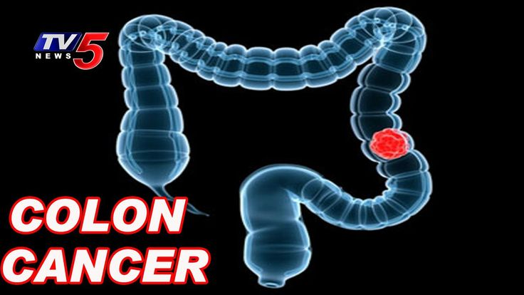 Causes And Symptoms OF Colon Cancer |Health File | TV5 News - WATCH VIDEO HERE -> http://bestcancer.solutions/causes-and-symptoms-of-colon-cancer-health-file-tv5-news    *** colon cancer causes and symptoms ***   For More Updates ► TV5 News Live ► Subscribe to TV5 News Channel: ►  Download TV5 Android App: ►Our Website : ► Like us on Facebook: ► Follow us on Twitter: ► Circle us on TV5 News Channel G+: ► Follow us on Pinterest:  TV5 news is a 24 hours Telugu.
