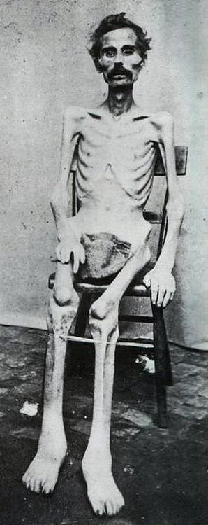 American Civil War POW. c. 1865. How sad what we do to other human beings ... In the name of war.