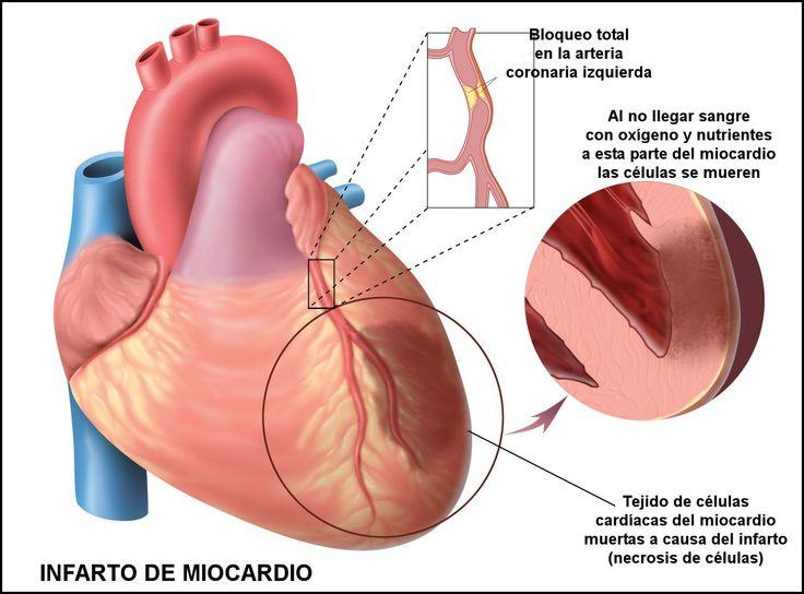 INFARTO AGUDO DE MIOCARDIO - IAM