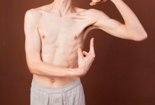 Kesehatan, Terpusat Media. Kuantitas makan tidak berpengaruh sama untuk setiap orang. Ada orang yang sudah makan banyak namun tetap saja kurus.