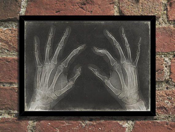 Steampunk Art Print Vintage Medical Hands XRay by Steampunkthings, $10.00
