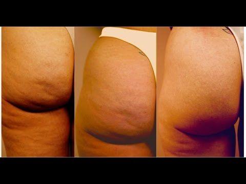 Como Eliminar La Celulitis De Forma Natural Y Casera - YouTube
