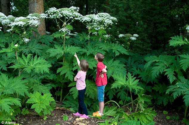 Giant Hogweed Burns | Giant hogweed is also a dangerous invasive plant whose sap can cause ...