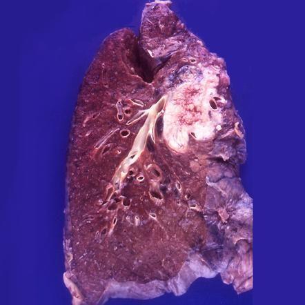 Squamous cell bronchogenic carcinoma: gross pathology | Radiology Case | Radiopaedia.org