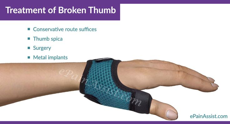 Broken thumb is quite common in contact sports like hockey, basketball, soccer etc.. Know the Causes, Risk Factors, Symptoms, Treatment, Exercises, Investigations.
