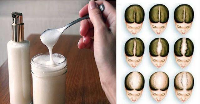 Aprenda como fazer shampoo caseiro com bicarbonato de sódio. Elimina a Caspa, Combate a Queda de Cabelo e faz o Cabelo Crescer bem Mais Rápido.