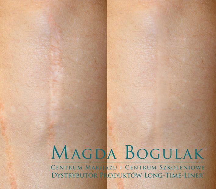 Pigmentacja medyczna blizn na skórze