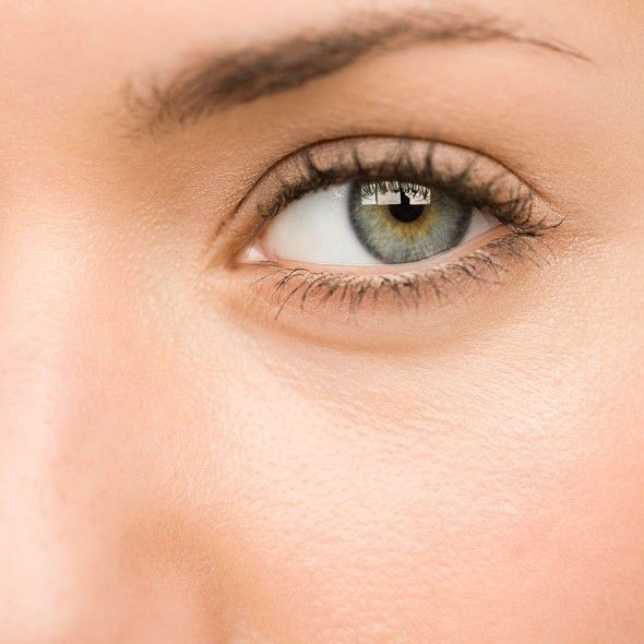 How to get rid of malar festoons and severe under-eye bags | Harper's Bazaar