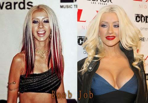 Christina Aguilera Plastic Surgery Before and After #christinaaguilera #cosmeticsurgery #breastimplant #plasticsurgery #celebritysurgery