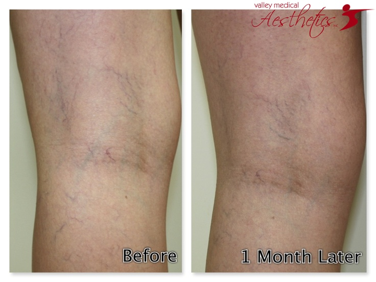 Injections For Tiny Spider Veins With Images
