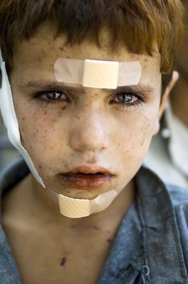 americanphoto:© Lynsey AddarioThe portrait of Khalid, 7, with shrapnel wounds or wounds from an explosion in Kunar Province, Afghanistan, receiving treatment from U.S. army medics.From: It's What I Do: Powerful Lynsey Addario Memoir Excerpt on Censorship