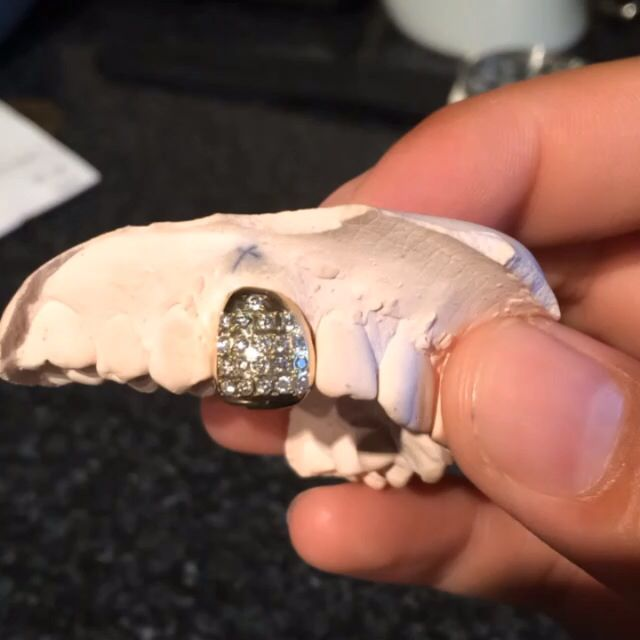 Iced out gold tooth