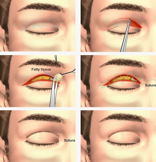 Upper Blepharoplasty Procedure. For the lower eyelids | cosmetic-surgery-mexico