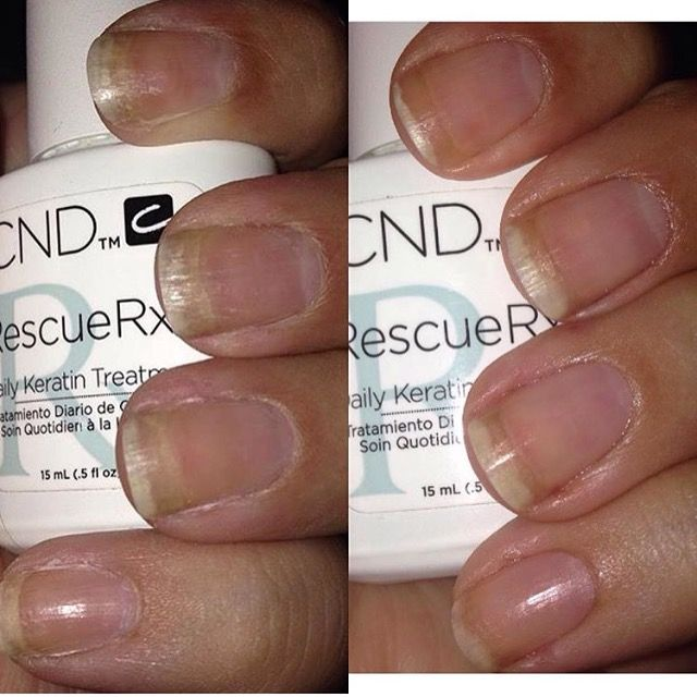 Damaged nails healed by the power of RESCUERXX™ Daily Keratin ...