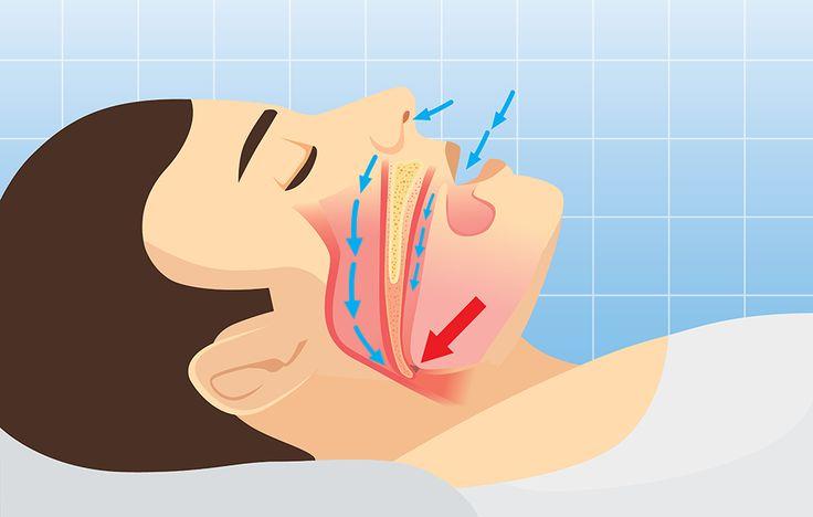 Sleep apnea http://www.prevention.com/health/6-health-conditions-that-have-almost-no-symptoms/slide/2
