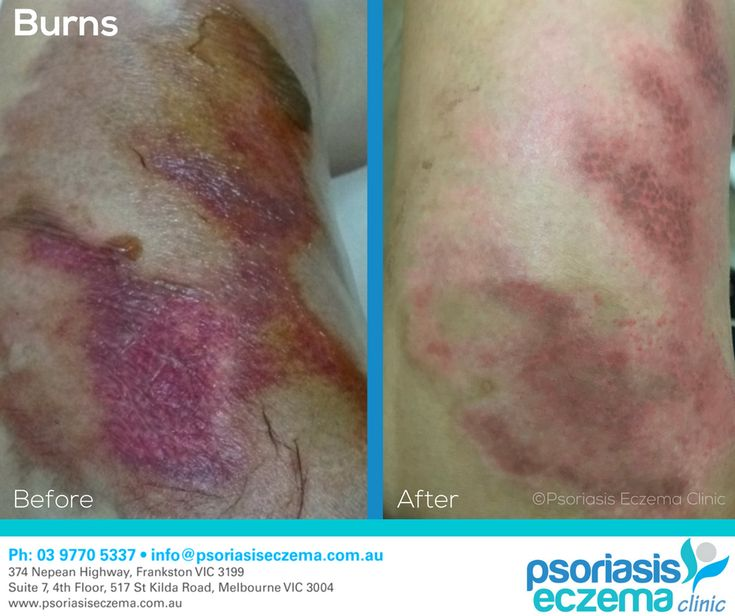 Burns Before and After Results! At the Psoriasis Eczema Clinic, we provide natural solutions based on medical research to treat the symptoms and address the underlying triggers of skin conditions. Contact us today to find out how we can help you! #integrative #dermatology #natural #treatment #solutions