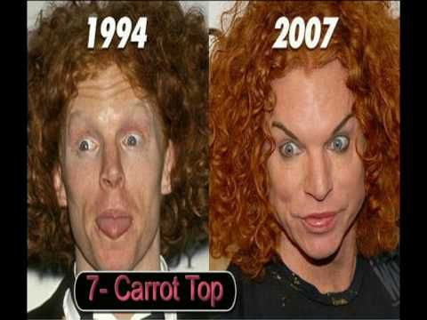 Carrot Top - before and after plastic surgery