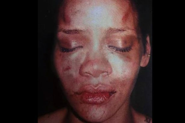 This graphic image is a cruel reminder of how Chris Brown is STILL glorified even after beating Rihanna.