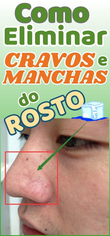 Aprenda técnicas caseiras para remover manchas de cravo e espinha   – DICAS DE SAÚDE – TRUQUES E REMÉDIOS CASEIROS