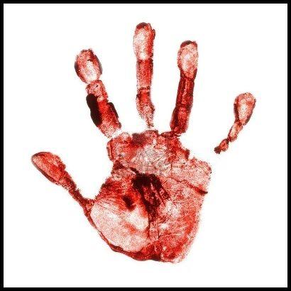 Pertolongan Pertama Menghentikan Pendarahan Luka | Tips Kesehatan Wanita