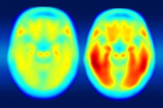 Using a new imaging agent that binds to tau protein and makes it visible in positron emission tomography (PET) scans, scientists have shown that measures of tau are better markers of the cognitive decline characteristic of Alzheimer's than measures of amyloid beta seen in PET scans.